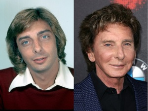Barry-Manilow-The-Singer-Admitted-To-Getting-Two-Facelifts